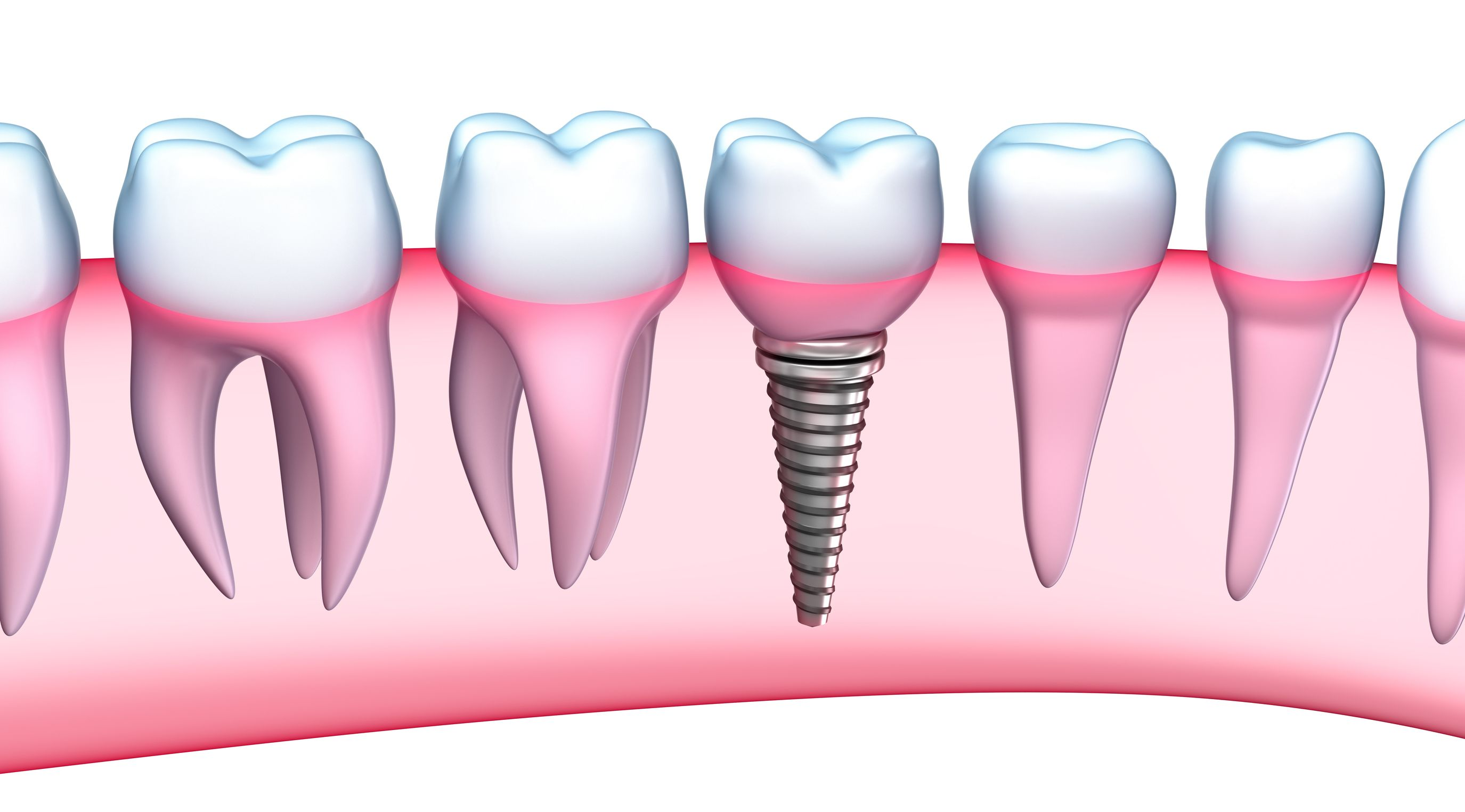 Lo mejor en implantes dentales